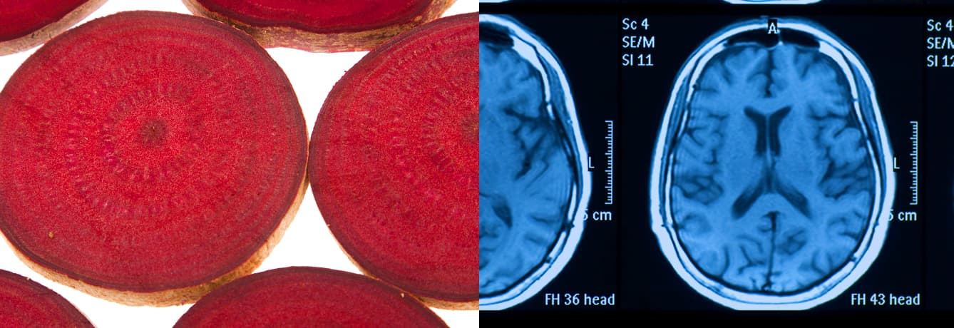 Beets-and-Brain-Health